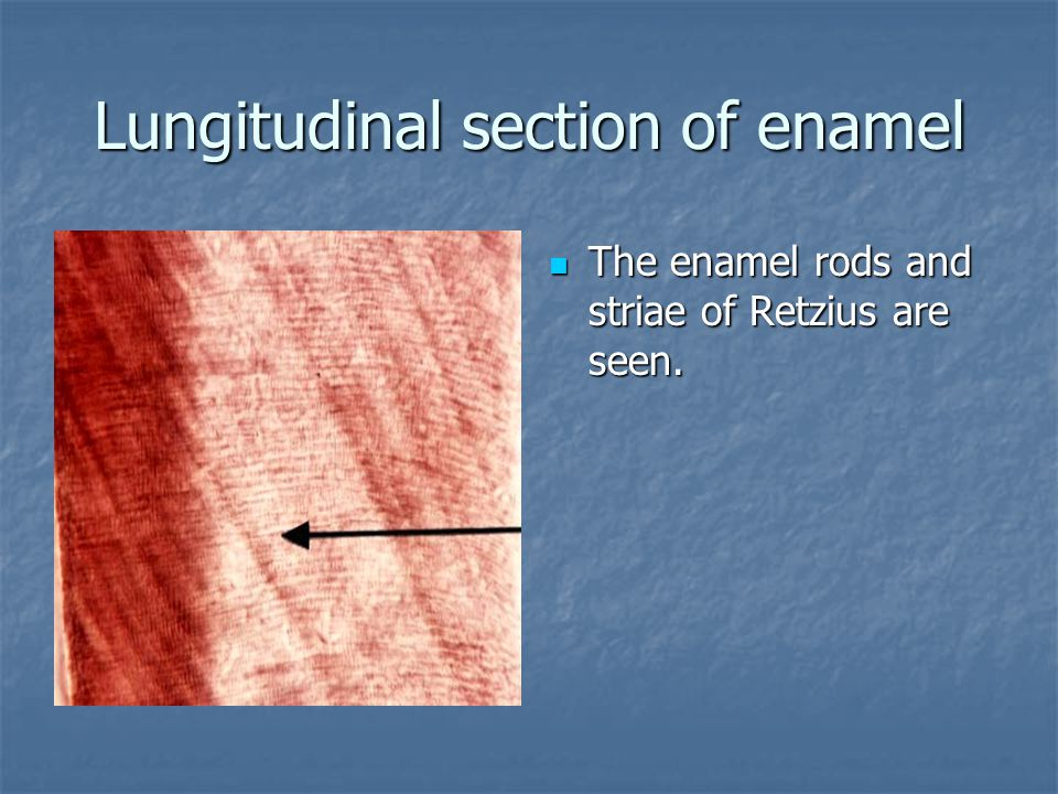 Lungitudinal section of enamel The enamel rods and striae of Retzius are seen.