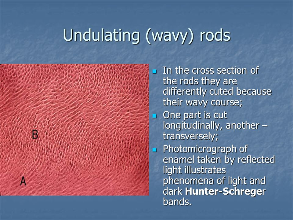 Undulating (wavy) rods In the cross section of the rods they are differently cuted because their wavy course; In the cross section of the rods they are differently cuted because their wavy course; One part is cut longitudinally, another – transversely; One part is cut longitudinally, another – transversely; Photomicrograph of enamel taken by reflected light illustrates phenomena of light and dark Hunter-Schreger bands.