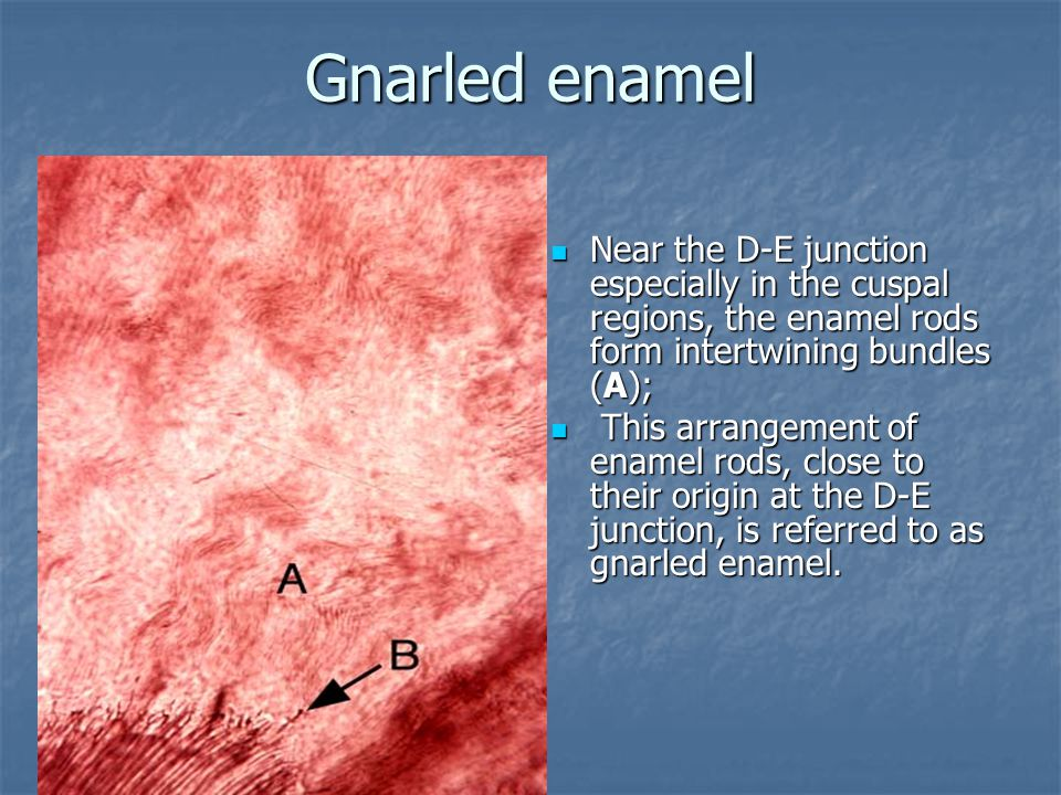 Gnarled enamel Near the D-E junction especially in the cuspal regions, the enamel rods form intertwining bundles (A); Near the D-E junction especially in the cuspal regions, the enamel rods form intertwining bundles (A); This arrangement of enamel rods, close to their origin at the D-E junction, is referred to as gnarled enamel.