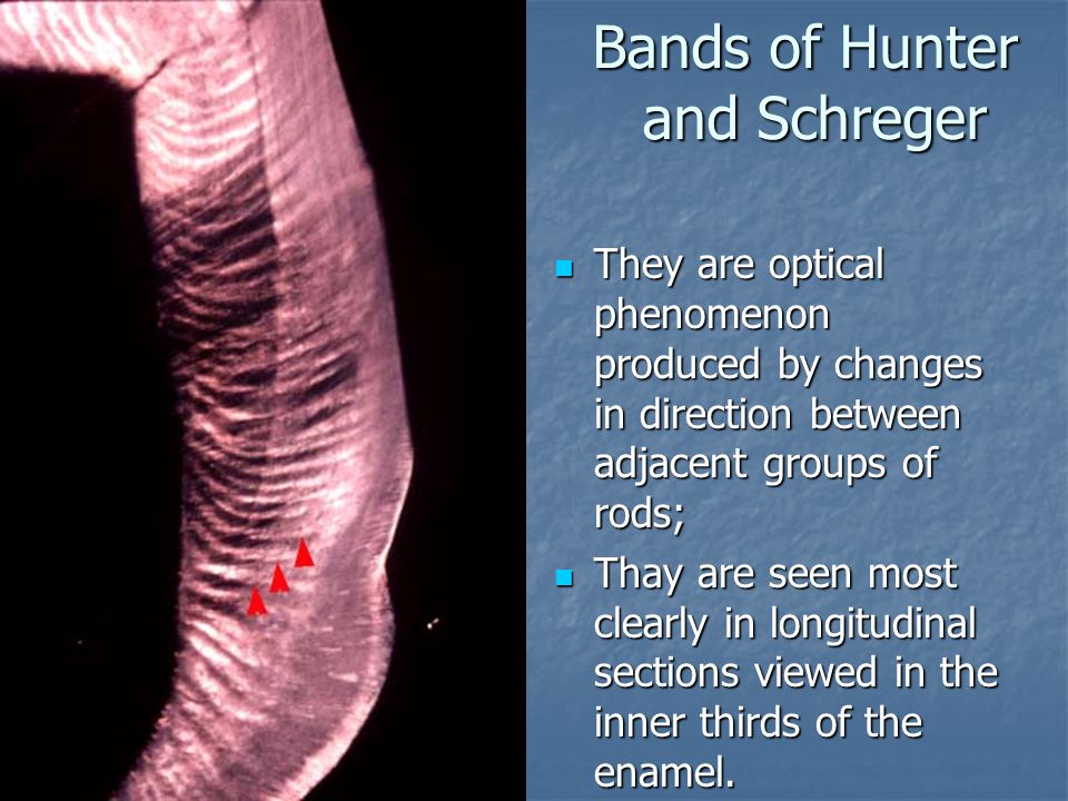 Bands of Hunter and Schreger They are optical phenomenon produced by changes in direction between adjacent groups of rods; They are optical phenomenon produced by changes in direction between adjacent groups of rods; Thay are seen most clearly in longitudinal sections viewed in the inner thirds of the enamel.