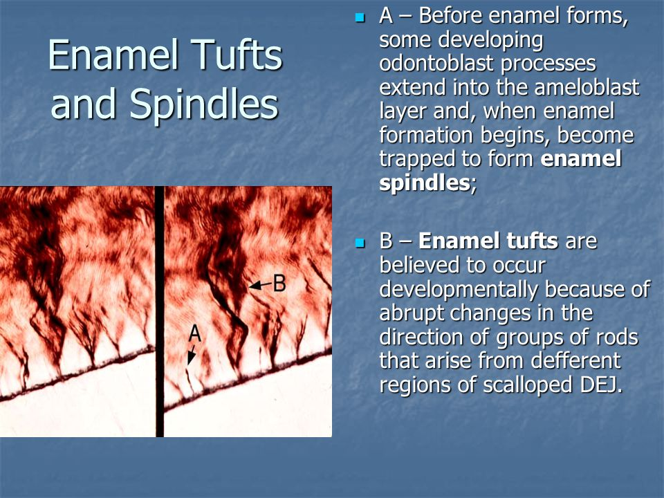 Enamel Tufts and Spindles А – Before enamel forms, some developing odontoblast processes extend into the ameloblast layer and, when enamel formation b
