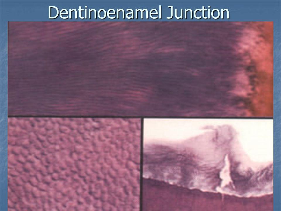 Dentinoenamel Junction