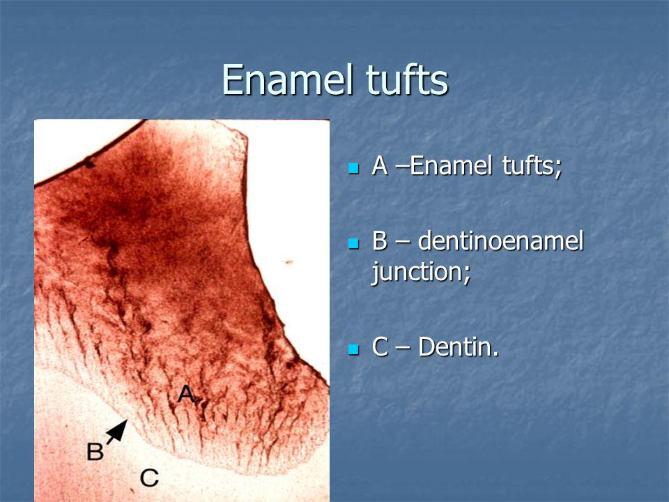 Enamel tufts А –Enamel tufts; А –Enamel tufts; В – dentinoenamel junction; В – dentinoenamel junction; С – Dentin. С – Dentin.