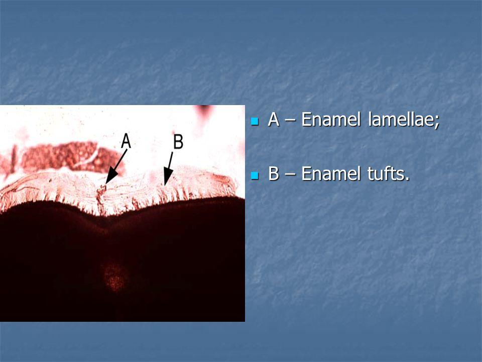 А – Еnamel lamellae; А – Еnamel lamellae; В – Еnamel tufts. В – Еnamel tufts.