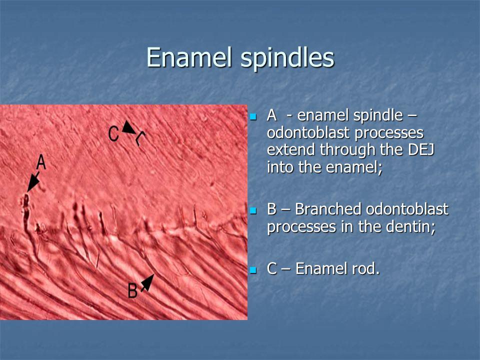 Enamel spindles А - enamel spindle – odontoblast processes extend through the DEJ into the enamel; А - enamel spindle – odontoblast processes extend through the DEJ into the enamel; В – Branched odontoblast processes in the dentin; В – Branched odontoblast processes in the dentin; С – Enamel rod.
