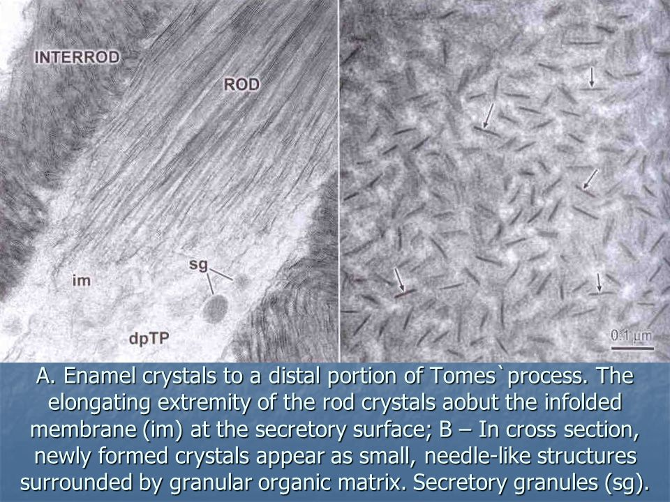 A. Enamel crystals to a distal portion of Tomes`process. The elongating extremity of the rod crystals aobut the infolded membrane (im) at the secretor