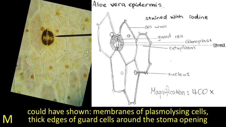 M could have shown: membranes of plasmolysing cells, thick edges of guard cells around the stoma opening