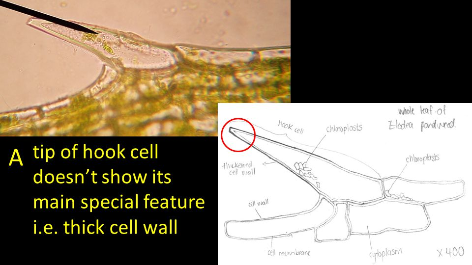 A tip of hook cell doesn't show its main special feature i.e. thick cell wall