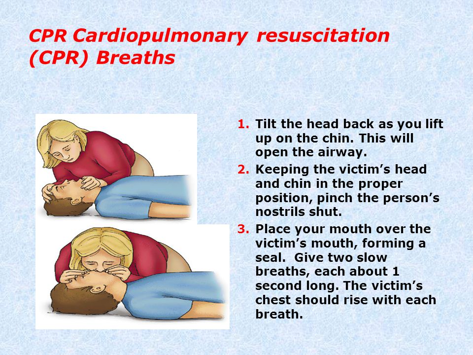 CPR Cardiopulmonary resuscitation (CPR) Breaths 1.Tilt the head back as you lift up on the chin. This will open the airway. 2.Keeping the victim's hea