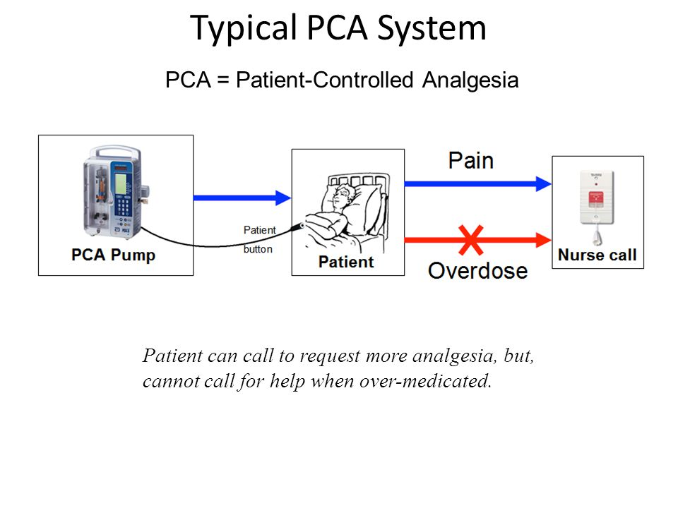 Typical PCA System PCA Pump (With patient button) Nurse call Patient PCA = Patient-Controlled Analgesia Patient can call to request more analgesia, but, cannot call for help when over-medicated.