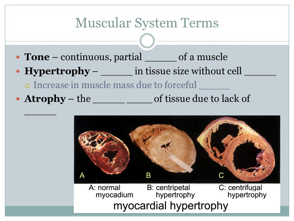 Muscular System Terms Tone – continuous, partial _____ of a muscle Hypertrophy – _____ in tissue size without cell _____  Increase in muscle mass due to forceful _____ Atrophy – the _____ ____ of tissue due to lack of _____