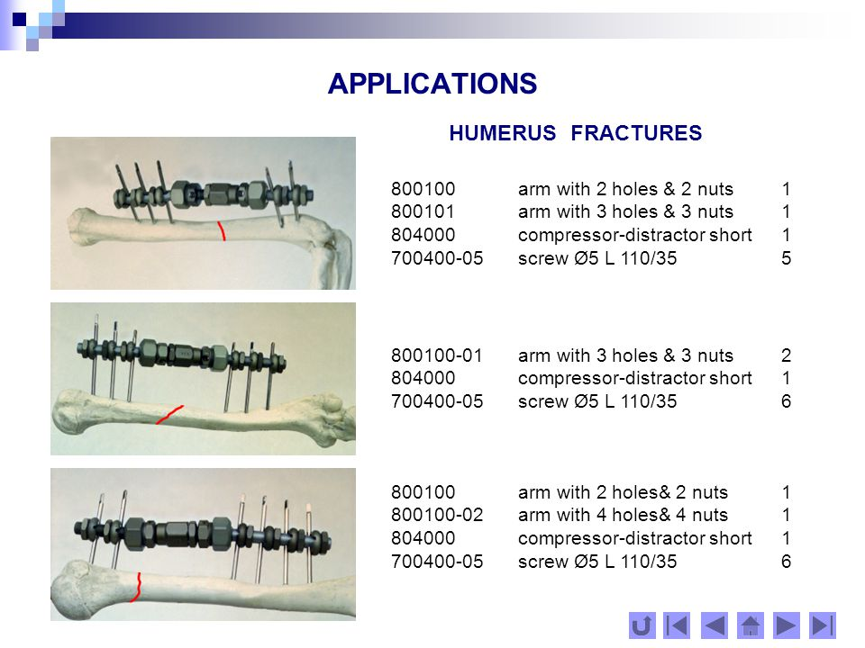 APPLICATIONS HUMERUS FRACTURES 800100arm with 2 holes & 2 nuts1 800101 arm with 3 holes & 3 nuts1 804000 compressor-distractor short 1 700400-05 screw Ø5 L 110/355 800100 arm with 2 holes& 2 nuts1 800100-02 arm with 4 holes& 4 nuts1 804000 compressor-distractor short 1 700400-05 screw Ø5 L 110/356 800100-01 arm with 3 holes & 3 nuts2 804000 compressor-distractor short1 700400-05 screw Ø5 L 110/356