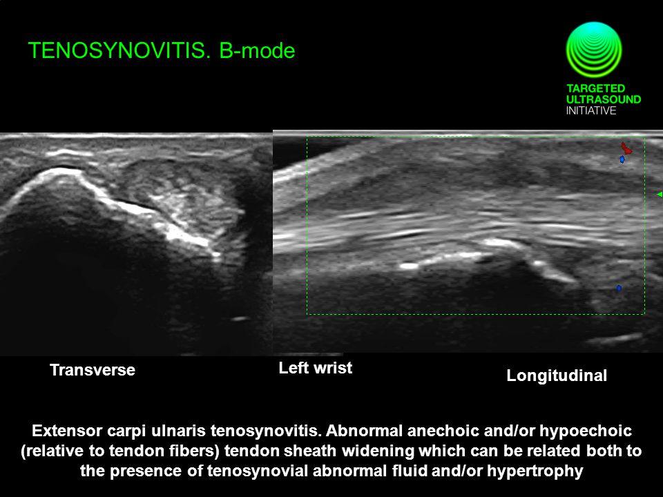 TENOSYNOVITIS.B-mode Transverse Longitudinal Extensor carpi ulnaris tenosynovitis.