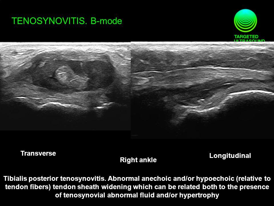 TENOSYNOVITIS.B-mode Transverse Longitudinal Tibialis posterior tenosynovitis.