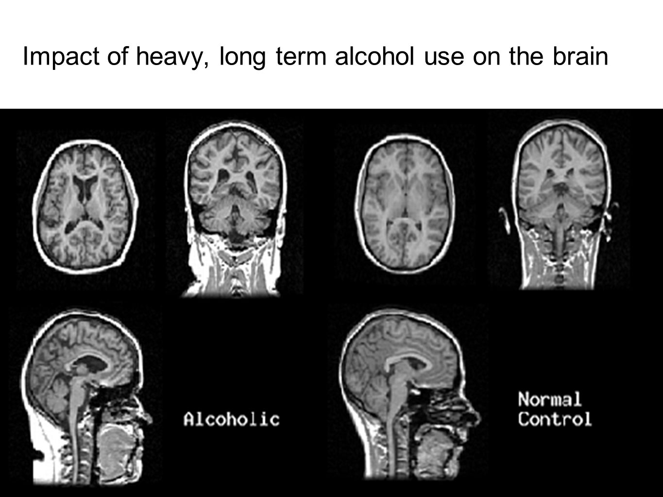Impact of heavy, long term alcohol use on the brain