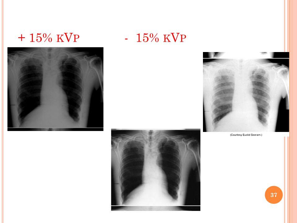 + 15% K V P - 15% K V P 37