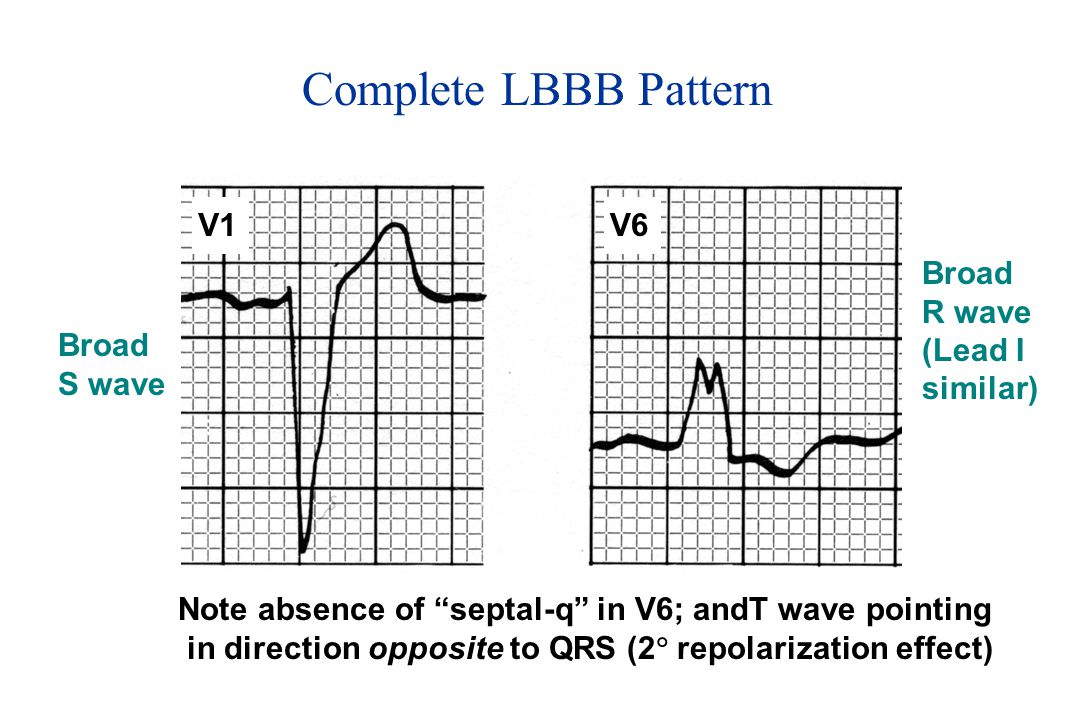 Note absence of septal-q in V6; andT wave pointing in direction opposite to QRS (2  repolarization effect) Broad S wave Broad R wave (Lead I similar) Complete LBBB Pattern V1V6