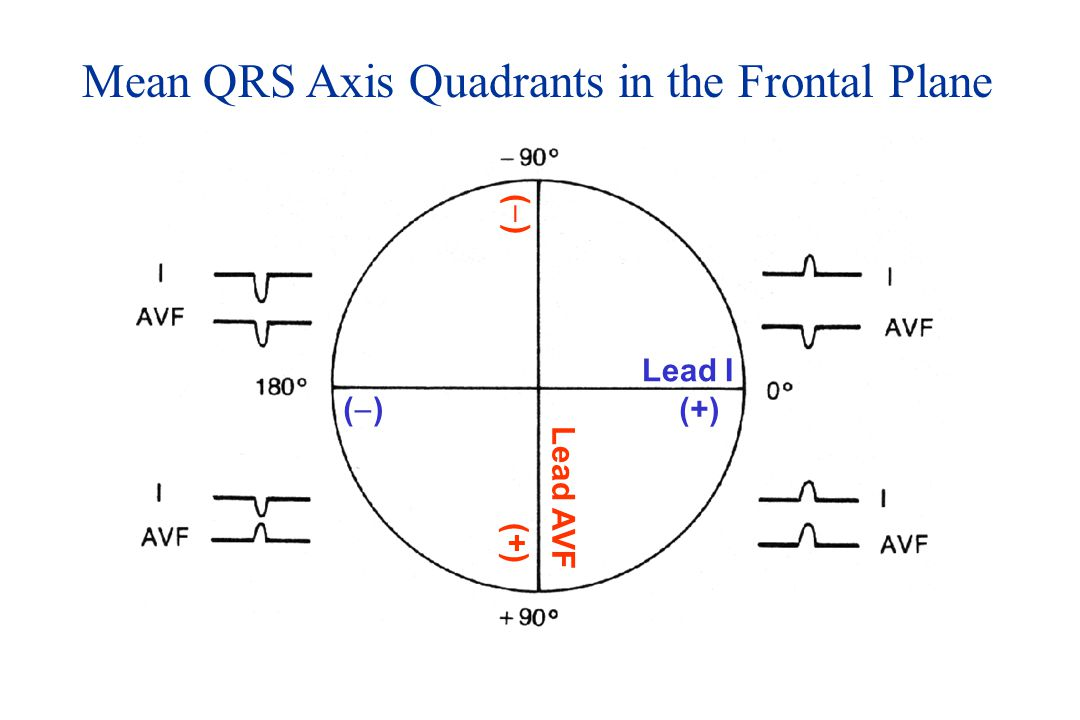 Mean QRS Axis Quadrants in the Frontal Plane Lead I Lead AVF (+) ()() ()()