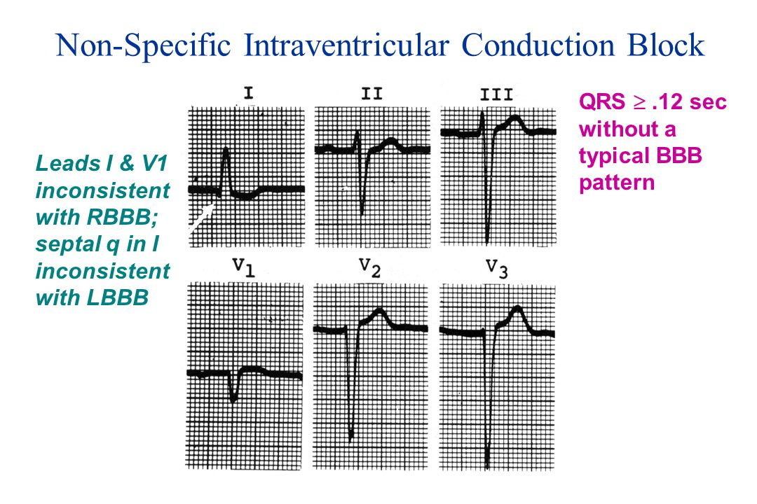 Non-Specific Intraventricular Conduction Block Leads I & V1 inconsistent with RBBB; septal q in I inconsistent with LBBB QRS .12 sec without a typica