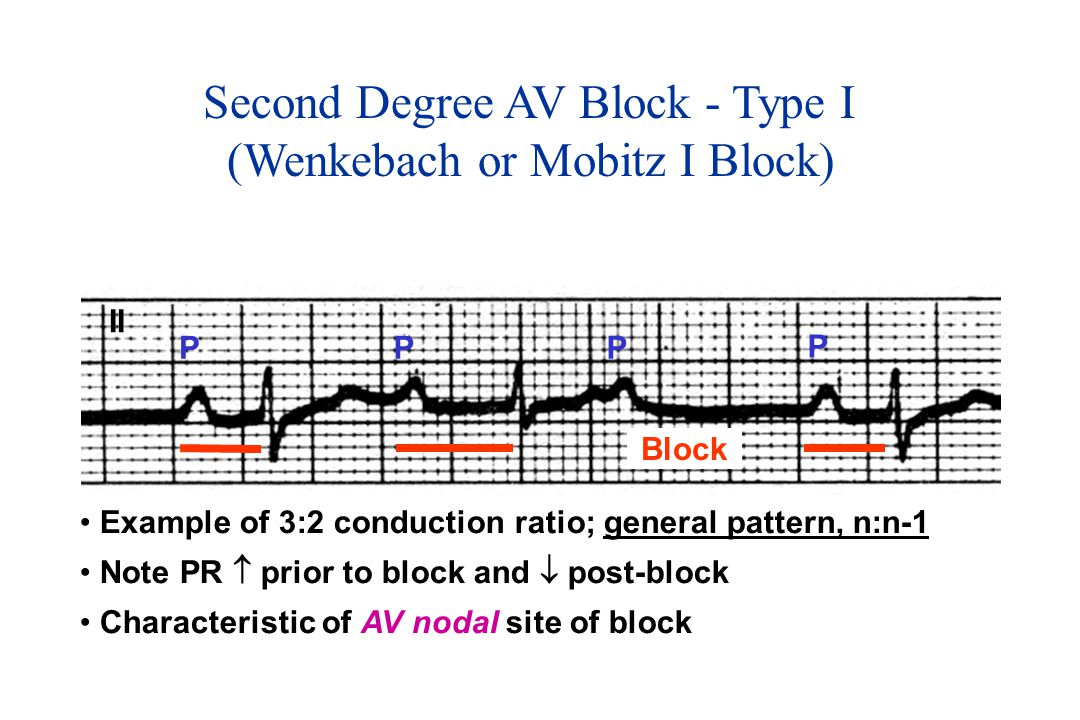 Second Degree AV Block - Type I (Wenkebach or Mobitz I Block) PPP P Block II Example of 3:2 conduction ratio; general pattern, n:n-1 Note PR  prior to block and  post-block Characteristic of AV nodal site of block