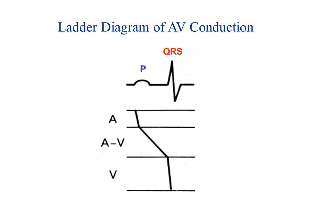 Ladder Diagram of AV Conduction P QRS