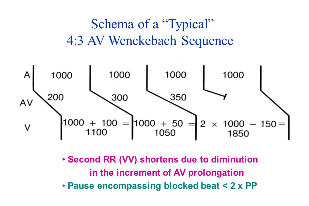 Schema of a Typical 4:3 AV Wenckebach Sequence Second RR (VV) shortens due to diminution in the increment of AV prolongation Pause encompassing blocked beat < 2 x PP