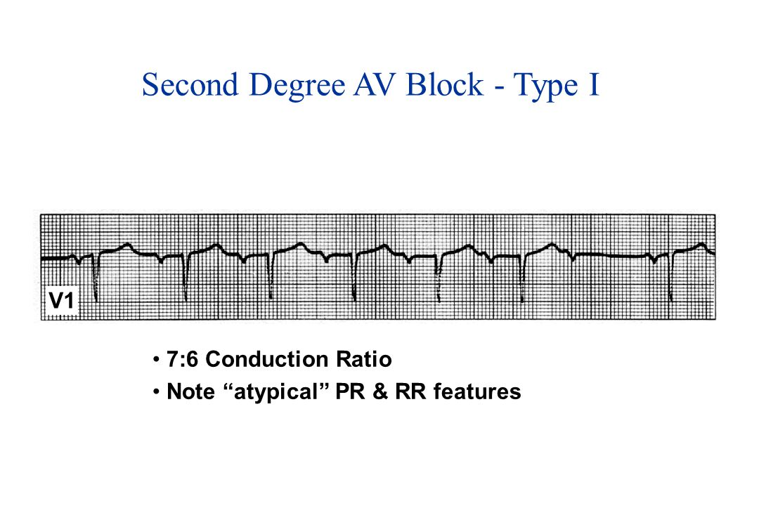 Second Degree AV Block - Type I V1 7:6 Conduction Ratio Note atypical PR & RR features