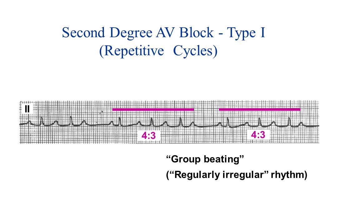 Second Degree AV Block - Type I (Repetitive Cycles) Group beating ( Regularly irregular rhythm) II 4:3