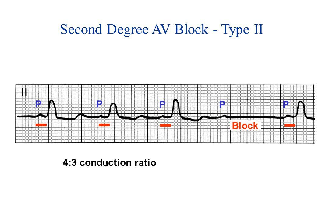 Second Degree AV Block - Type II PP PPP 4:3 conduction ratio Block