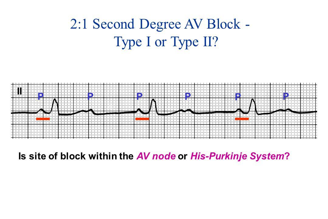 II PPPP P P 2:1 Second Degree AV Block - Type I or Type II.