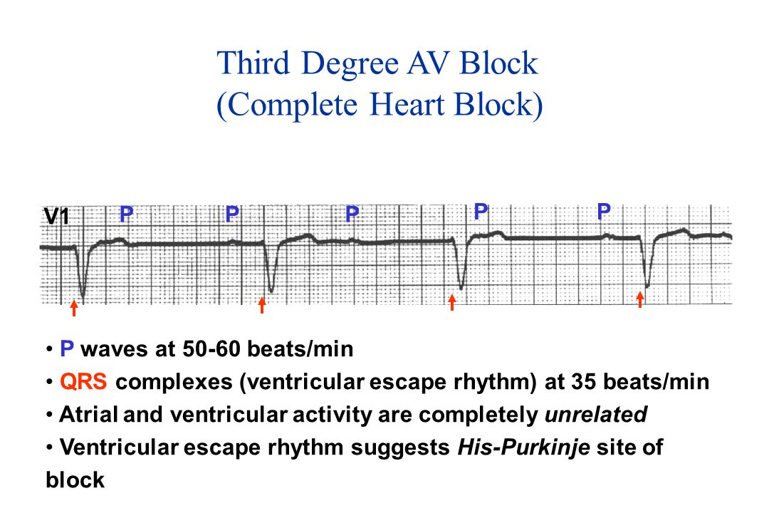 Third Degree AV Block (Complete Heart Block) V1 PP PP P P waves at 50-60 beats/min QRS complexes (ventricular escape rhythm) at 35 beats/min Atrial an