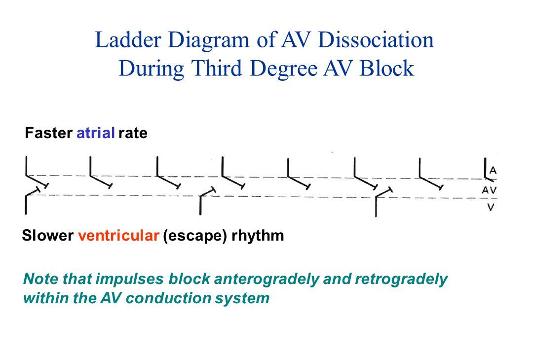Ladder Diagram of AV Dissociation During Third Degree AV Block Faster atrial rate Slower ventricular (escape) rhythm Note that impulses block anterogradely and retrogradely within the AV conduction system