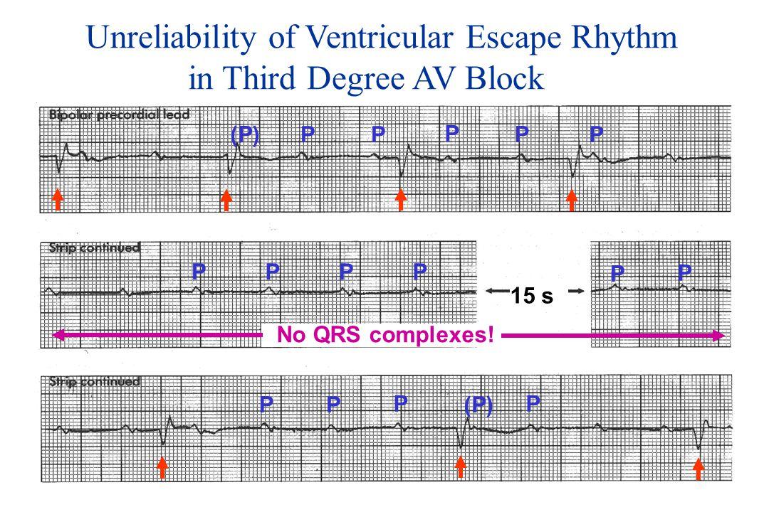Unreliability of Ventricular Escape Rhythm in Third Degree AV Block PP (P) P P P PPPP P P No QRS complexes.