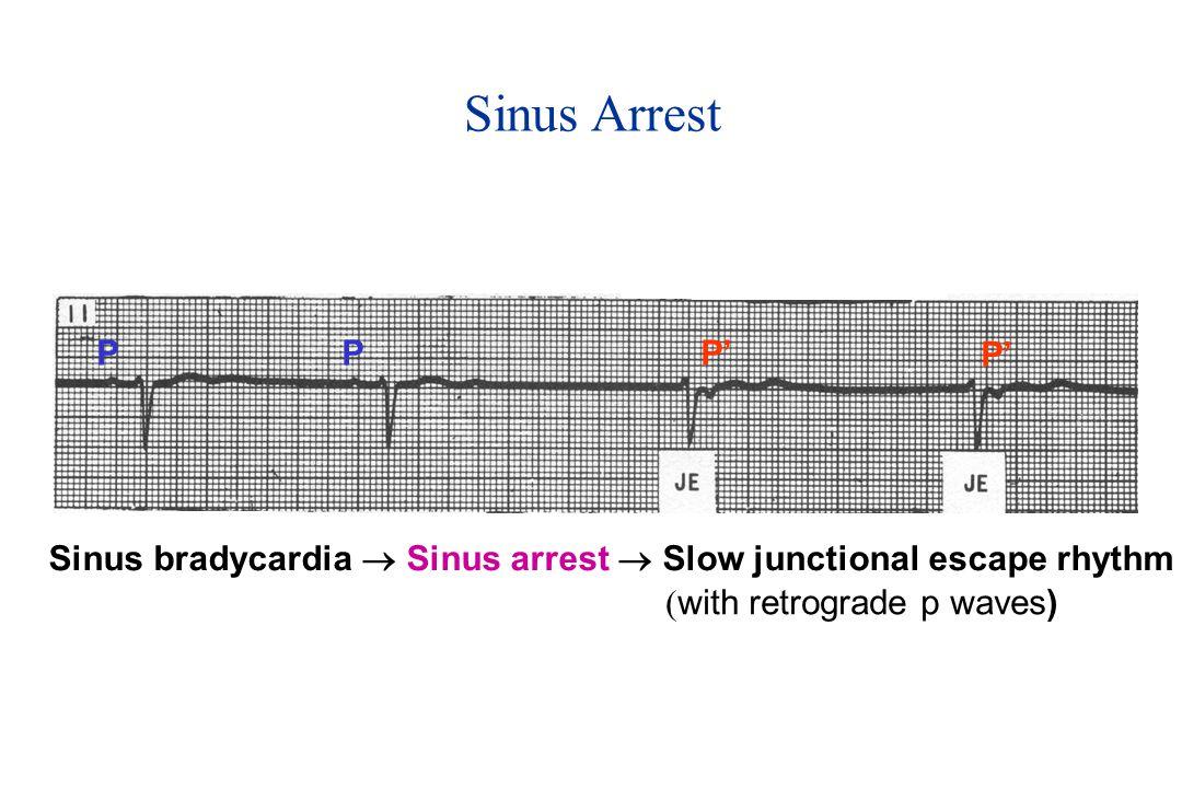 PPP' Sinus bradycardia  Sinus arrest  Slow junctional escape rhythm ( with retrograde p waves) Sinus Arrest