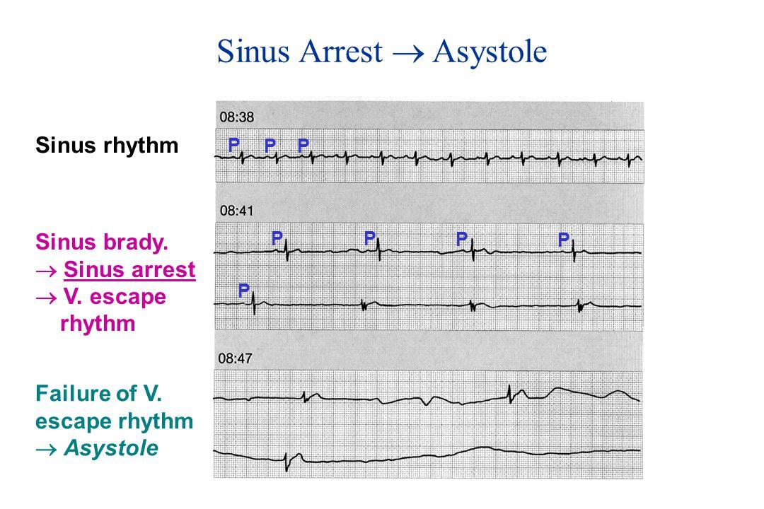 Sinus Arrest  Asystole Sinus rhythm Sinus brady. Sinus arrest  V.