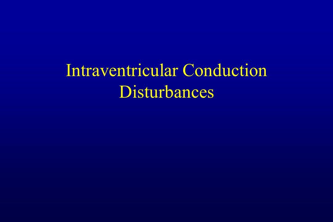 Intraventricular Conduction Disturbances