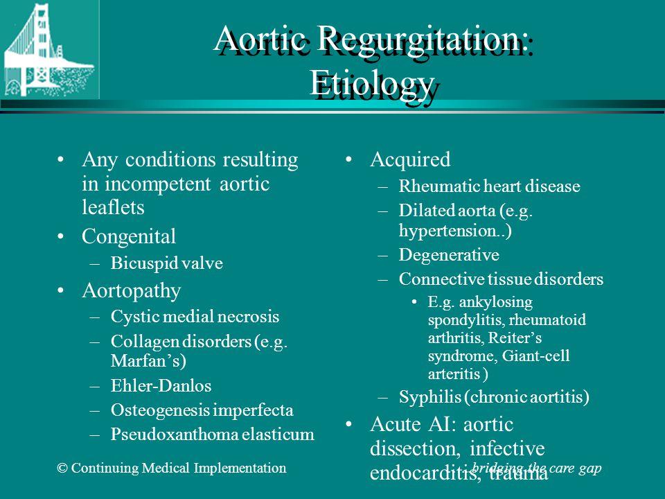 © Continuing Medical Implementation …...bridging the care gap Aortic Regurgitation: Symptoms Dyspnea, orthopnea, PND Chest pain.
