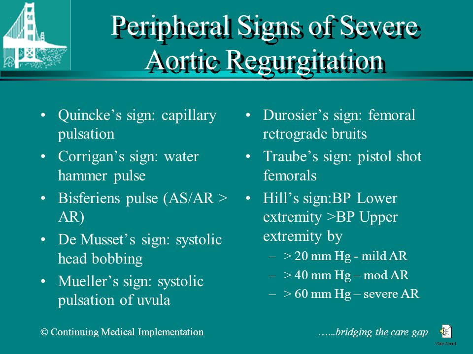 © Continuing Medical Implementation …...bridging the care gap Peripheral Signs of Severe Aortic Regurgitation Quincke's sign: capillary pulsation Corrigan's sign: water hammer pulse Bisferiens pulse (AS/AR > AR) De Musset's sign: systolic head bobbing Mueller's sign: systolic pulsation of uvula Durosier's sign: femoral retrograde bruits Traube's sign: pistol shot femorals Hill's sign:BP Lower extremity >BP Upper extremity by –> 20 mm Hg - mild AR –> 40 mm Hg – mod AR –> 60 mm Hg – severe AR