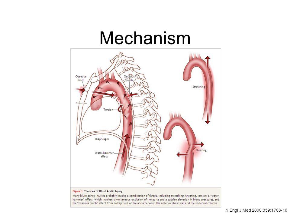 Mechanism N Engl J Med 2008;359:1708-16
