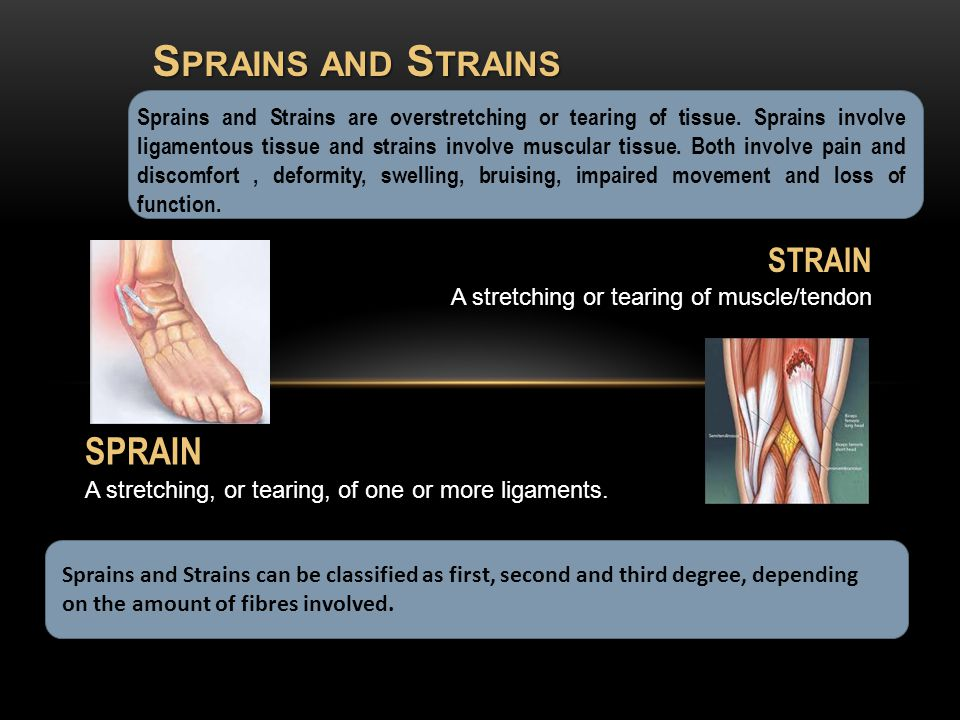 Sprains and Strains can be classified as first, second and third degree, depending on the amount of fibres involved.