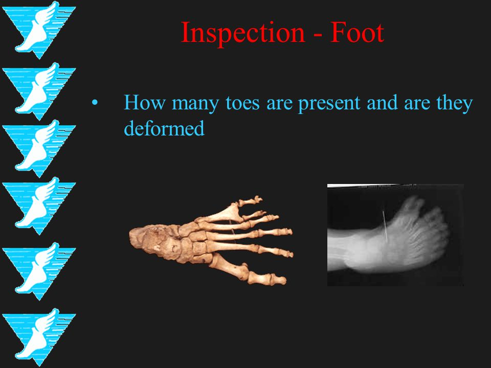 Inspection - Foot How many toes are present and are they deformed