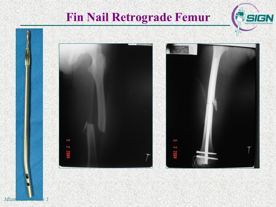 Miami talk version 1 Fin Nail Retrograde Femur