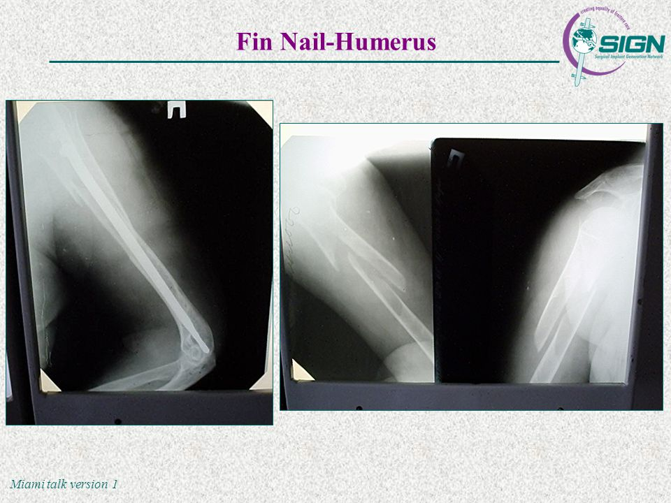 Miami talk version 1 Fin Nail-Humerus