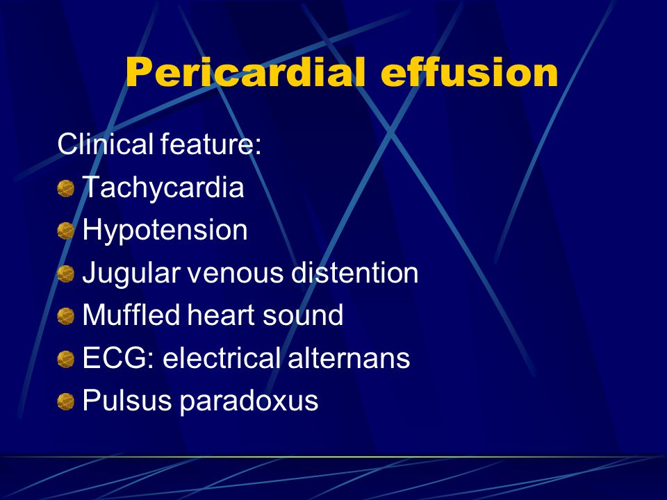 Pericardial effusion Clinical feature: Tachycardia Hypotension Jugular venous distention Muffled heart sound ECG: electrical alternans Pulsus paradoxus