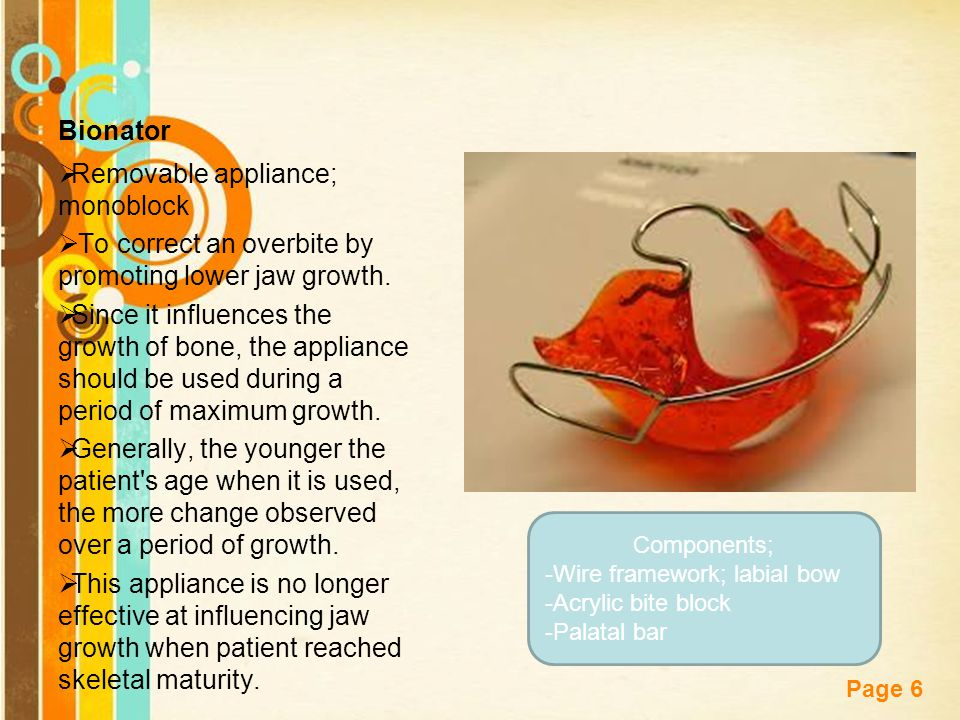 Free Powerpoint Templates Page 6 Bionator  Removable appliance; monoblock  To correct an overbite by promoting lower jaw growth.  Since it influenc