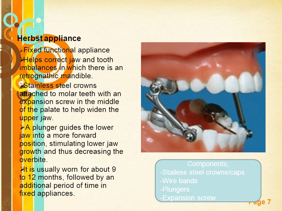 Free Powerpoint Templates Page 7 Herbst appliance  Fixed functional appliance  Helps correct jaw and tooth imbalances in which there is an retrognathic mandible.