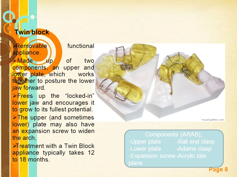 Free Powerpoint Templates Page 8 Twin block  Removable functional appliance.  Made up of two components, an upper and lower plate, which works toget