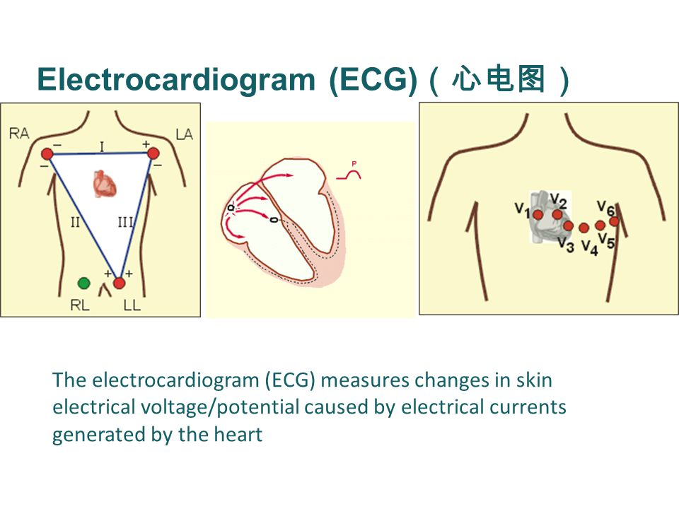 Electrocardiogram (ECG) (心电图) The electrocardiogram (ECG) measures changes in skin electrical voltage/potential caused by electrical currents generated by the heart