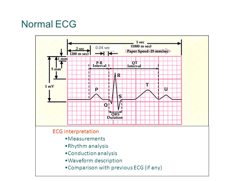 Normal ECG 0.04 sec ECG interpretation Measurements Rhythm analysis Conduction analysis Waveform description Comparison with previous ECG (if any)