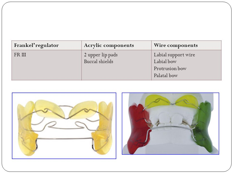 Frankel' regulatorAcrylic componentsWire components FR III2 upper lip pads Buccal shields Labial support wire Labial bow Protrusion bow Palatal bow